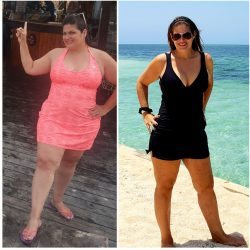 weight-loss surgery patient